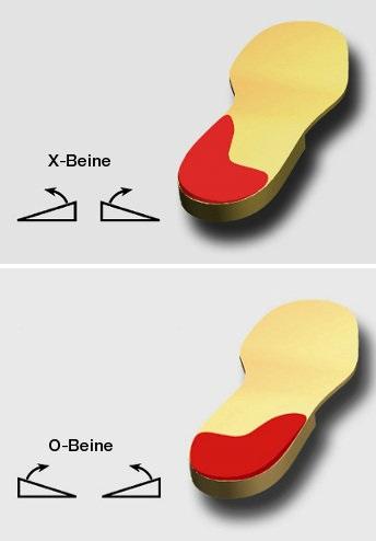 Corregir piernas arqueadas