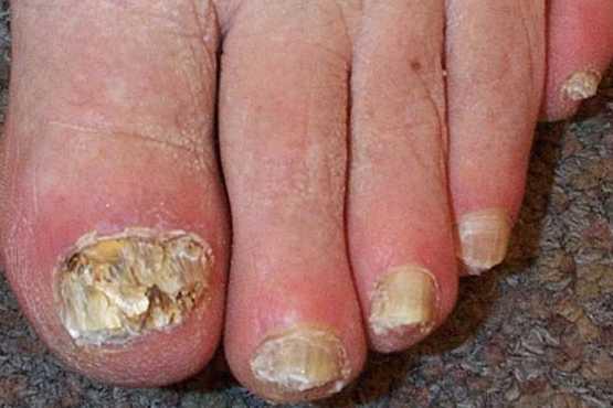 El hongo de los pie los síntomas